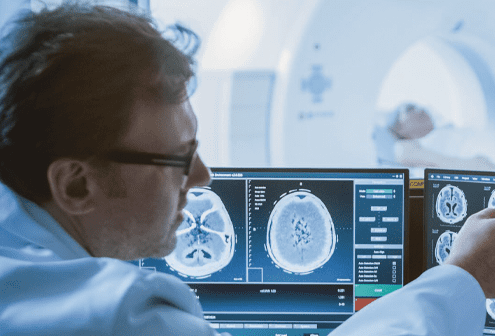 A Radiologist Viewing Bran Imaging